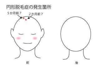 円形脱毛症002.jpg